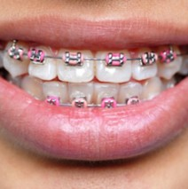 Adult Orthodontics Give You a Beautiful Smile at any Age!