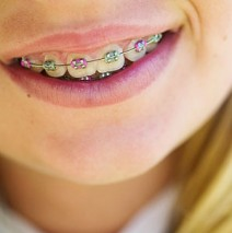 Great tips from your orthodontist on how to avoid plaque!