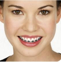 What's your best colour? Coloured braces