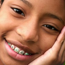Benefits of Braces: What can Braces do for your Teeth?