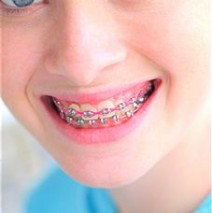 Benefits Of Braces: What Can Braces Do For You?