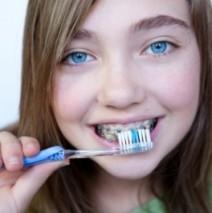 How Braces Work in Straightening your Teeth