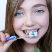 How Braces Work in Straightening your Teeth