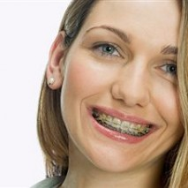 Invisalign vs. Braces – Which is the better option?