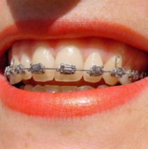 Improving your Teen's Smile with Braces