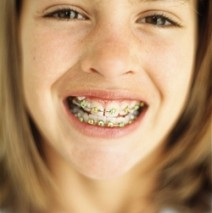 Stages of Orthodontic Treatment: What Should You Expect?