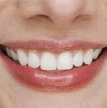 Why Do People Want Perfectly Straight Teeth?