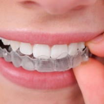 Do You Know How To Clean Your Clear Braces?