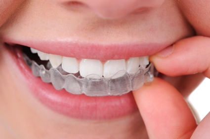 Invisalign-advantages-in-straightening-teeth