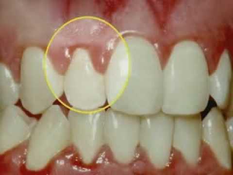 gum disease periodontal