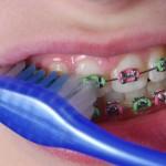 how brush braces