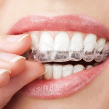 Why Clear Braces are for Everyone