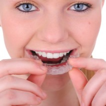 Some of the Many Benefits to Invisalign