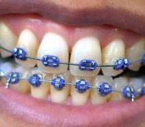 Orthodontic Emergencies: Be Prepared