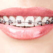 Adult Orthodontics and You