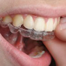 Invisalign: Not Just For The Younger Set